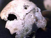 Research on a skull fragment thought to be Hitler's has cast doubt on the circumstances of his death/ Reuters